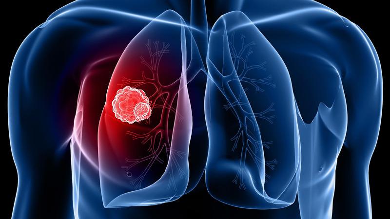 tüdőrák tünetei