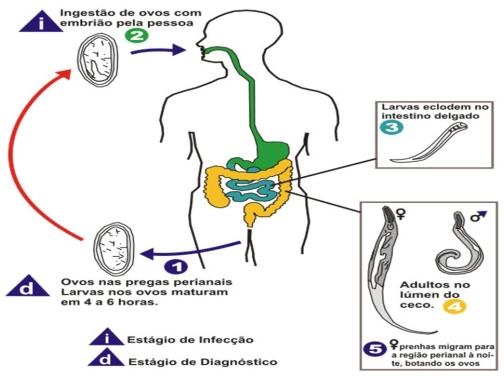 oxyuris vermicularis siklus hidup