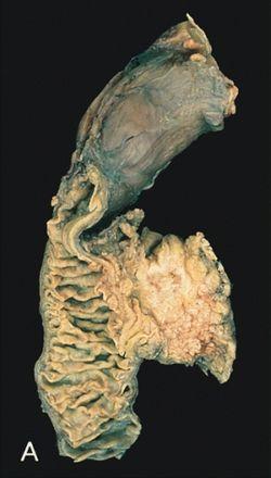 hasnyálmirigyrák daganat marker