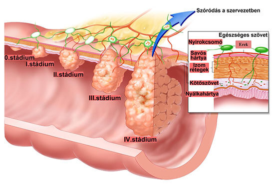 vastagbélrák fiatal tünetekben