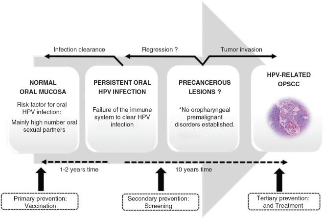 humán papillomavírus oropharyngealis rák