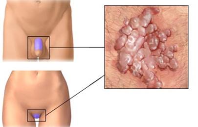 a genitális szemölcsök diagnózisa a végbélben)