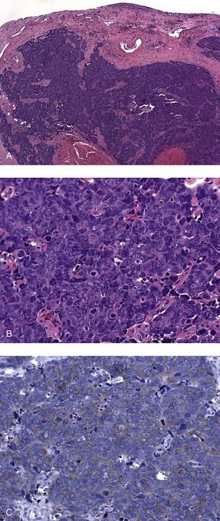 urothelialis papilloma ck20