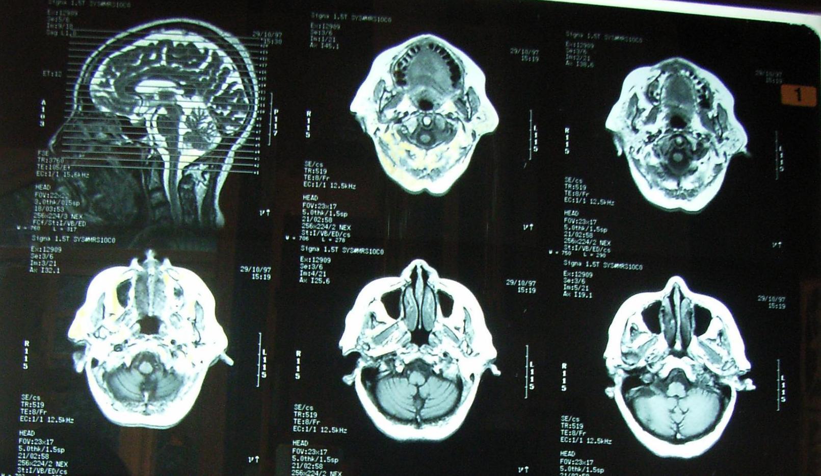 Kontrasztanyagos röntgenvizsgálat