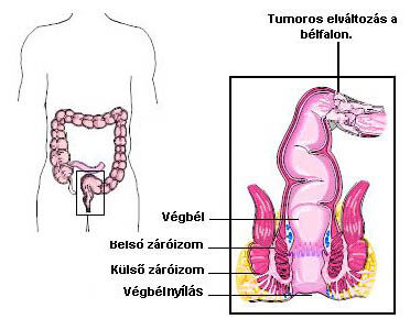 Daganatos betegségek - A vastagbélrák | gal-kuria.hu