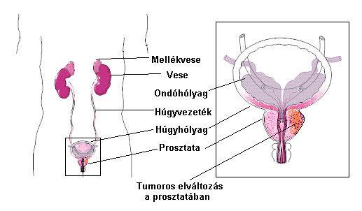 prosztatarák kezelése neuroendokrin gyomorrák