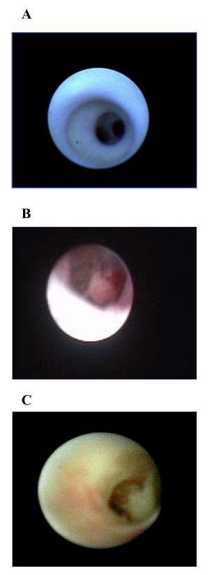 Klinikai vizsgálatok a Papilloma, intraductalis - Klinikai vizsgálatok nyilvántartása - ICH GCP