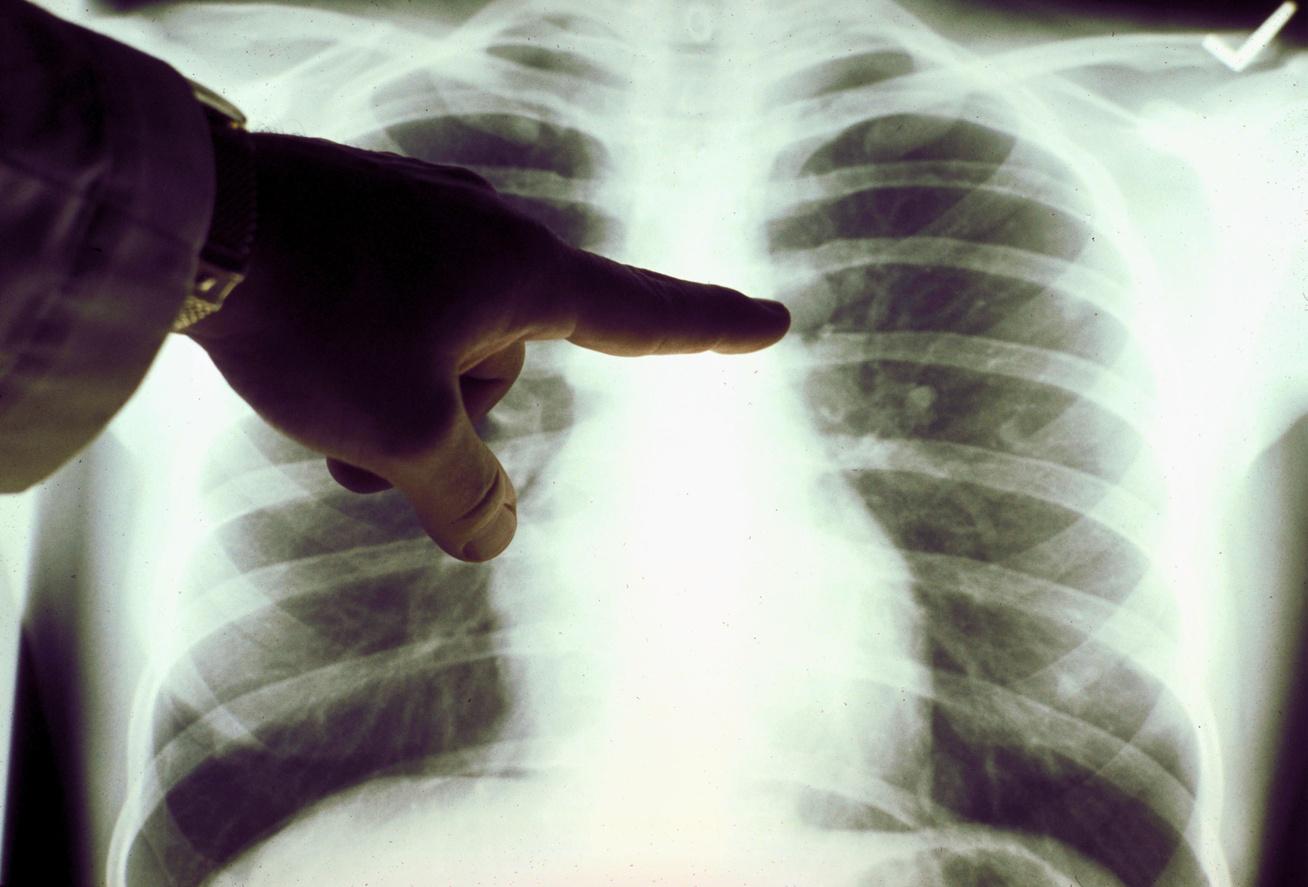 tüdőrák tünetei)