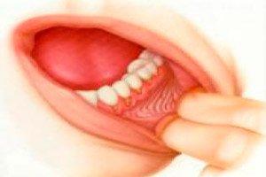 A szájüregi rákok kezelése
