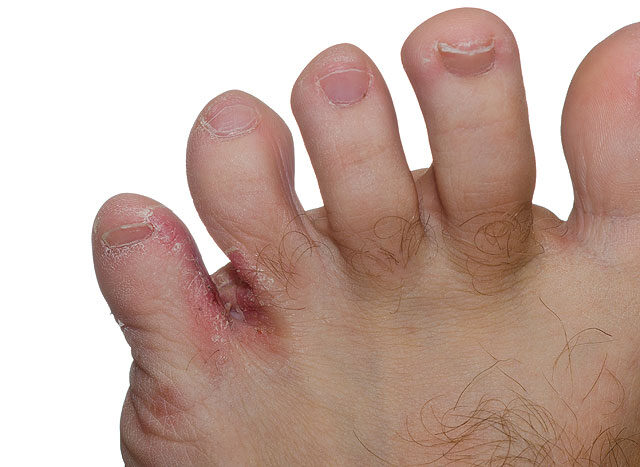 a lábujjak között égő kezelés)