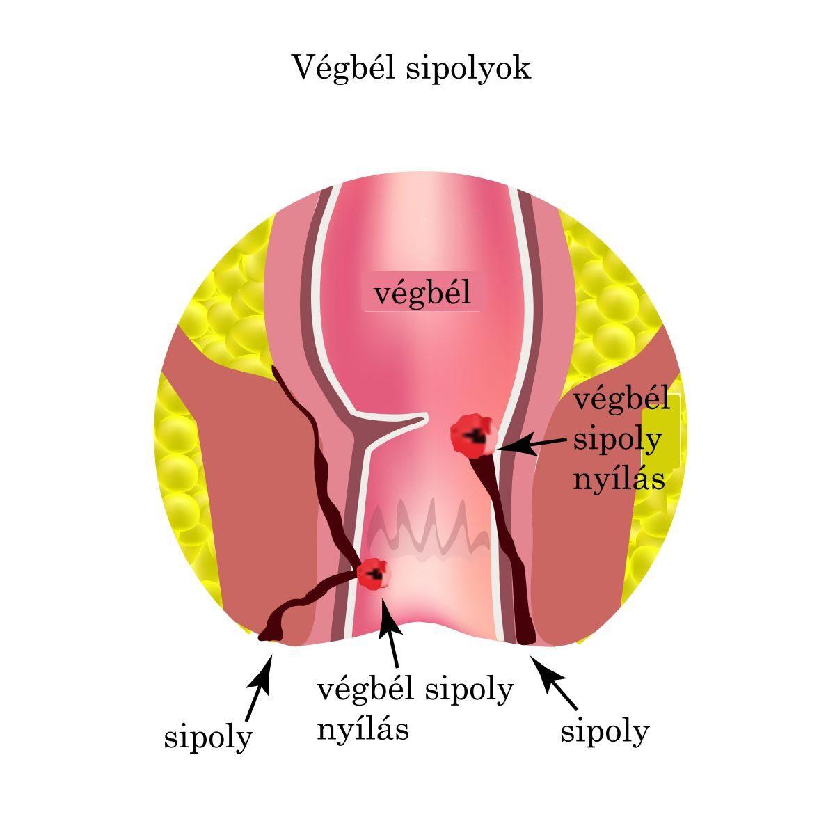 vastagbélrák tünetei és okai)