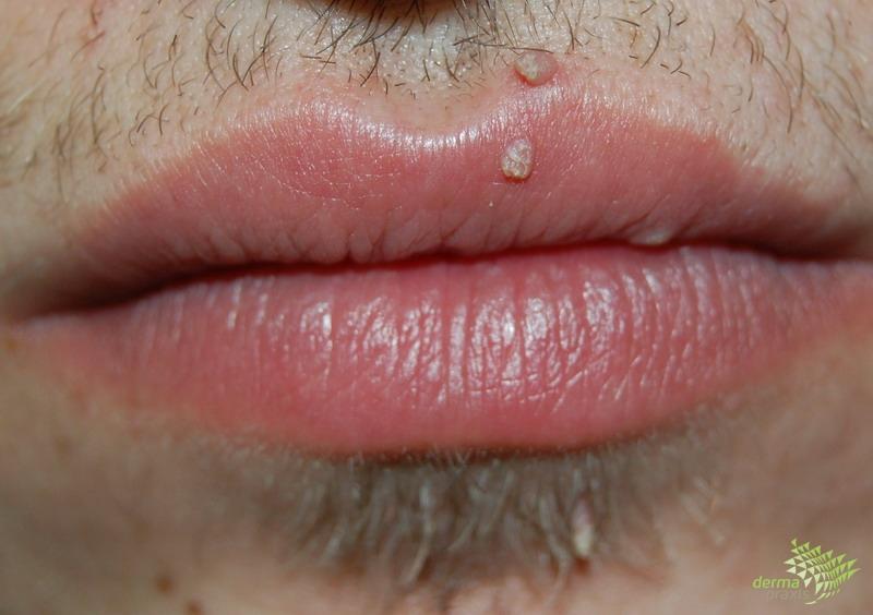 papillómák a száj kezelésében)