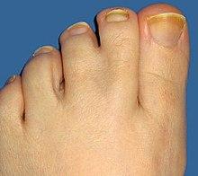 Íme a lábfej 10 jellegzetes formája – és amit elárul rólunk! - Blikk Rúzs