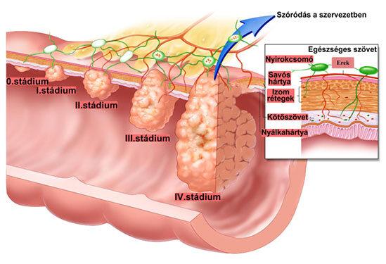 Vastagbélrák, végbélrák - tünetek, kezelés, megelőzés | gal-kuria.hu