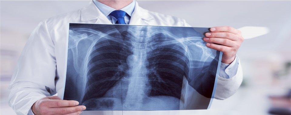 Tüdőgyulladás, Paraziták a tüdőben, hogyan kell kezelni