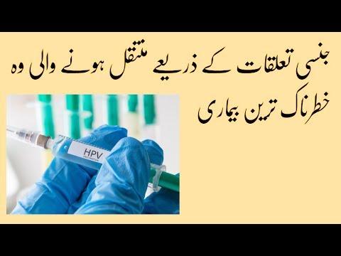 Papilloma vírus jelentése urdu nyelven - it-management.hu