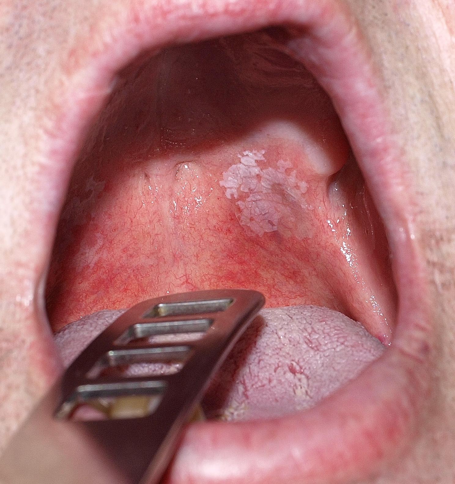 szájüregi rák jelei