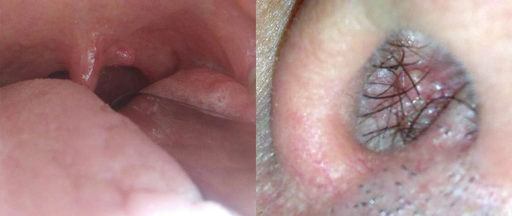 cos e il papilloma vírus hpv)