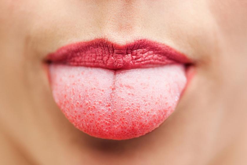 hpv szemölcsök a száj kezelésében