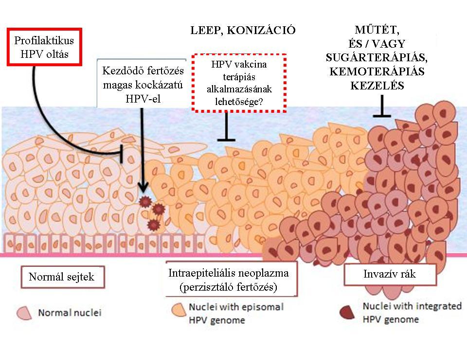 hogy a hpv hogyan okoz rákot