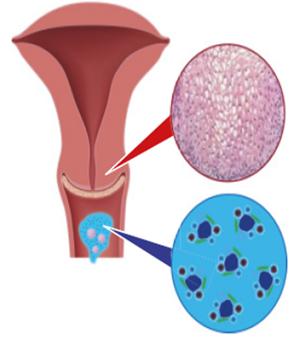papillomavírus nők kezelésében)