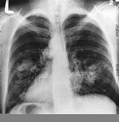 A tüdőrák típusai   gal-kuria.hu