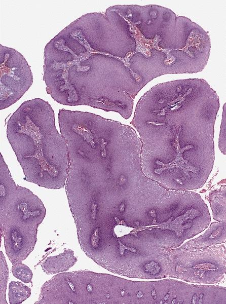 terpentin fürdők condylomával hpv virus gyogyszeres kezelese