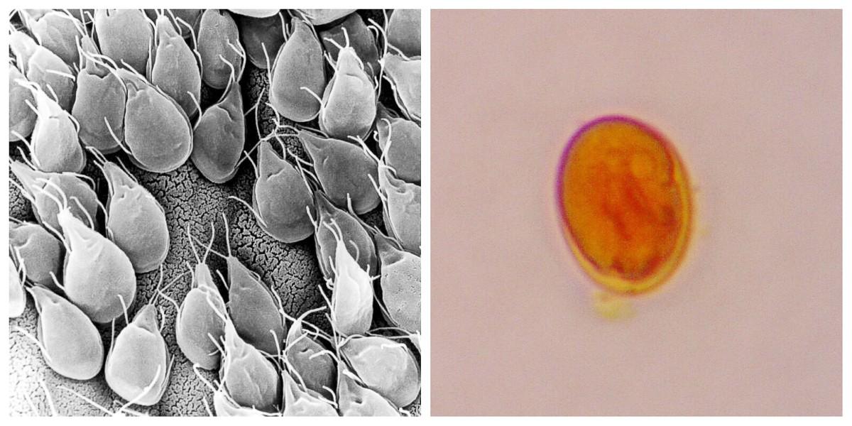 giardia parazita a tünetben)