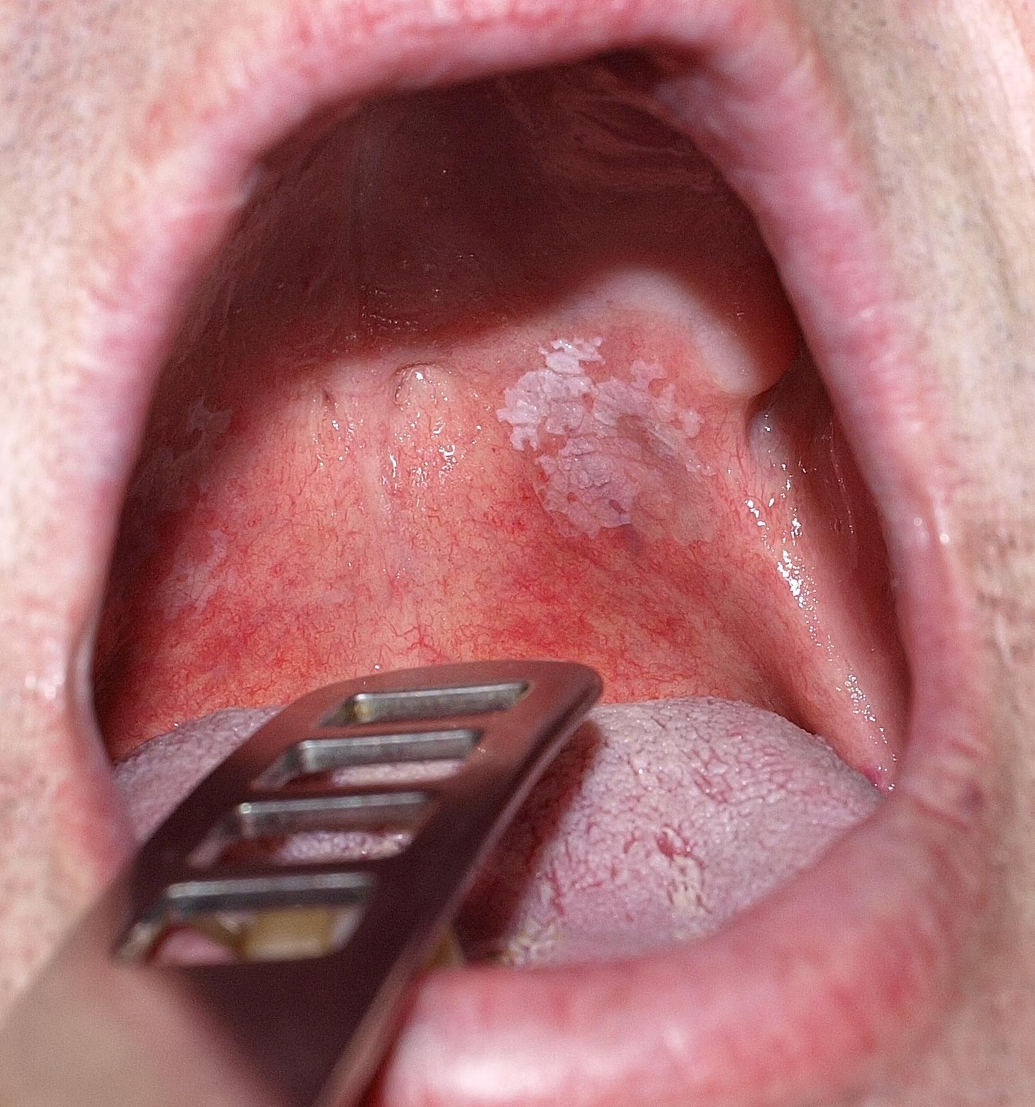 szemölcsöket mutat a nyelv alatt