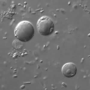 a blastocystis hominis parazitái)