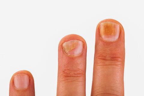 a körömféreg-fertőzés tünetei