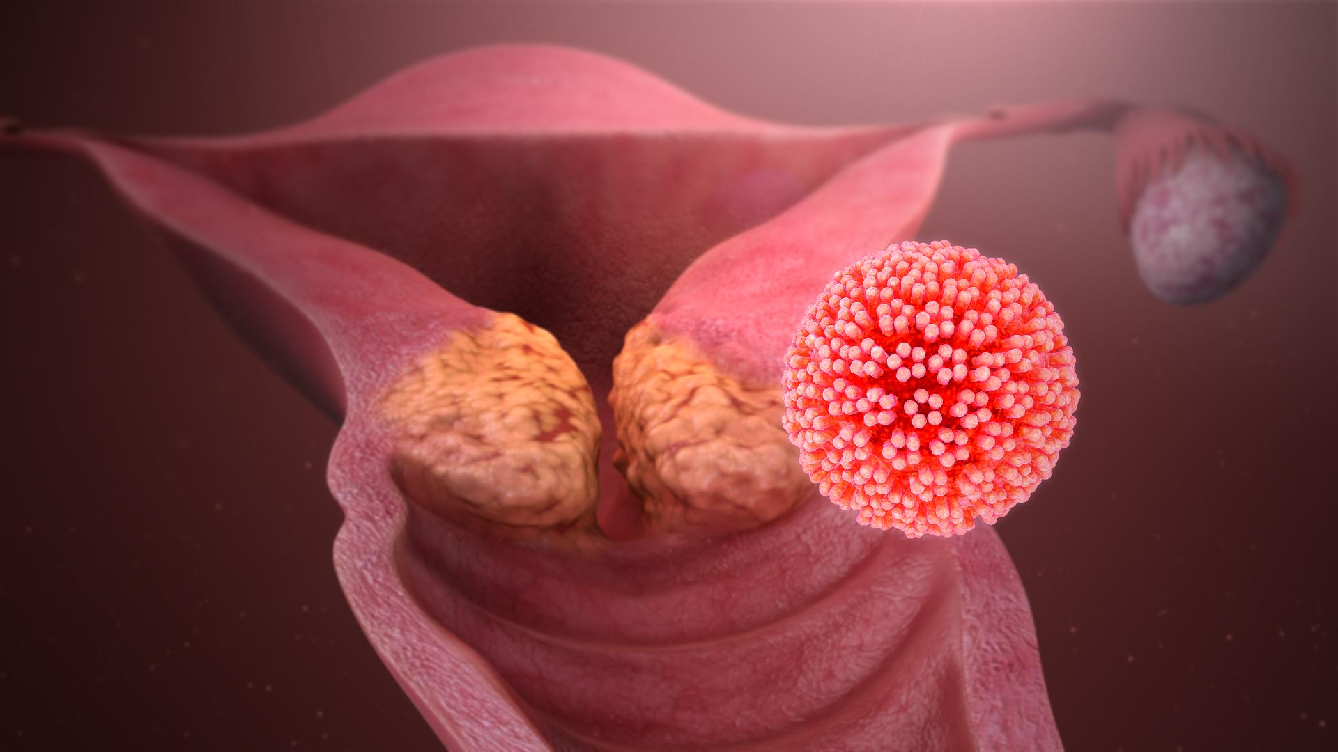 hpv man papilloma emberi papillomavírus a vérben