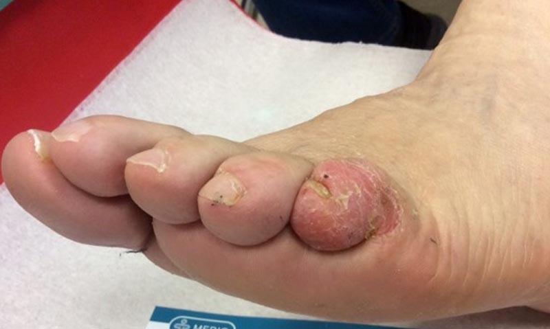 Milyen betegségekről árulkodik a láb? - HáziPatika