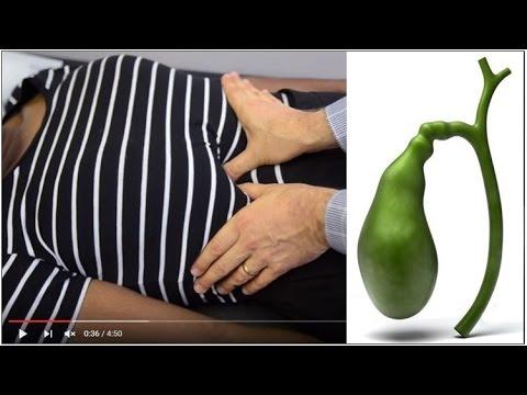 Férgek az epehólyag kezelésében, Vigyázat, férgek! | TermészetGyógyász Magazin