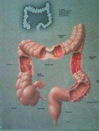 Kolonhidroterápia