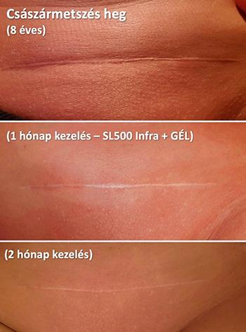Seborrhoeás dermatitis tünetei és kezelése gyerekeknél