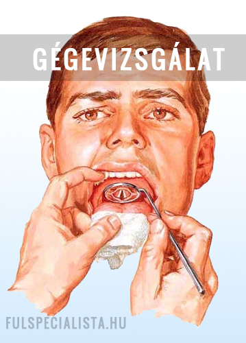 gége papilloma kezelése)
