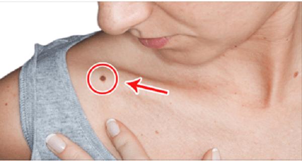 anyajegy méregtelenítő foltok kezelhető nemi szervi szemölcsök kandidalomatosisa