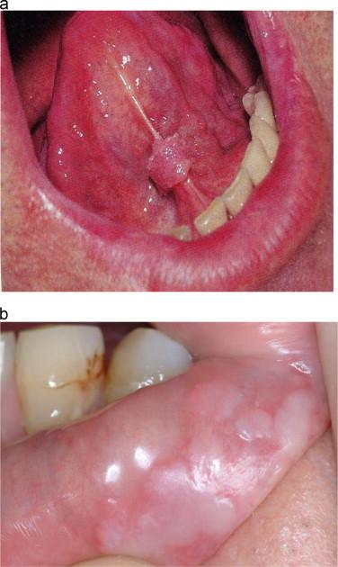 papillomavírus gomb nő