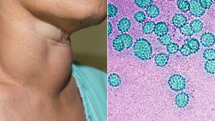 hpv vírus hím