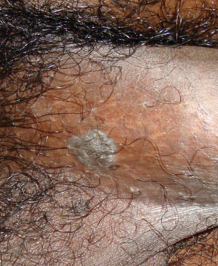 condyloma acuminata baba