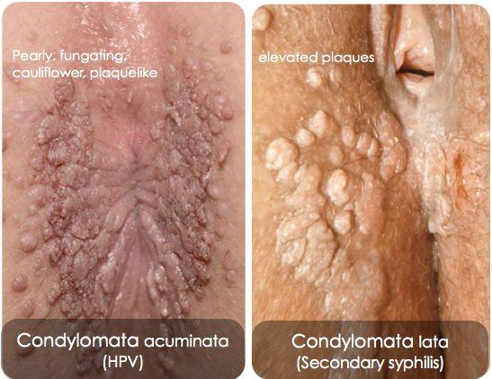 condyloma acuminata és condyloma lata