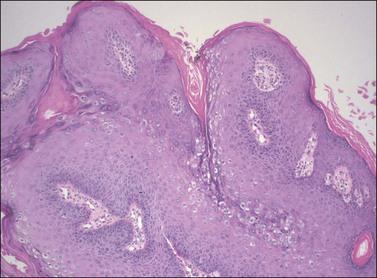 condyloma epithelium)