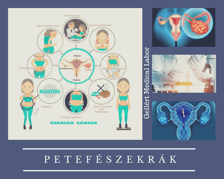 petefészekrák genetikai kapcsolat
