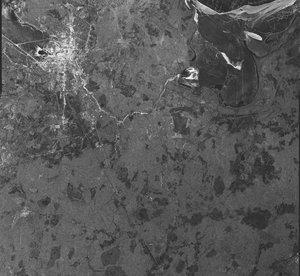 ahol a Volgograd papillómákat eltávolítják ami jó a pinwormok eltávolítására