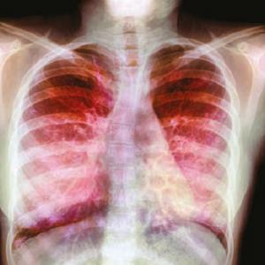 hpv vakcina nhs felnőttek uk
