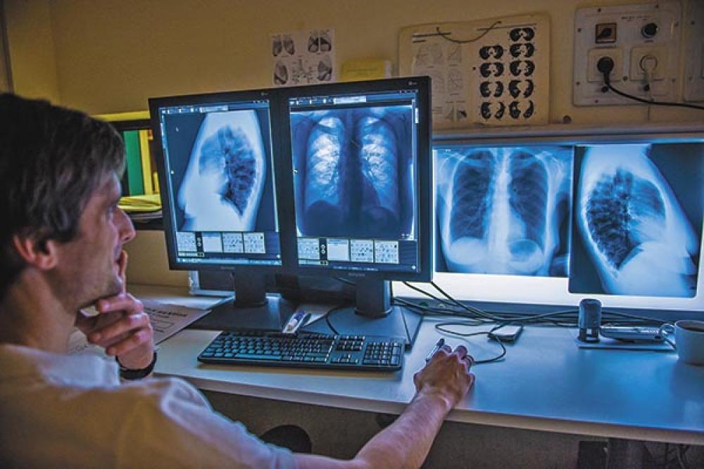 a tüdőrák túlélési aránya