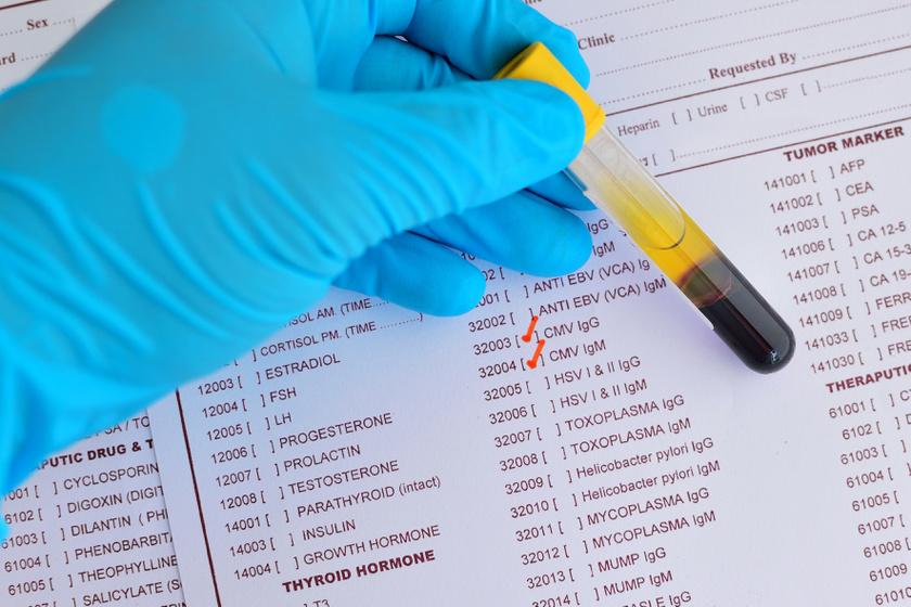 Ezért veszélyes a HPV-vírus a gyereket tervező nők számára