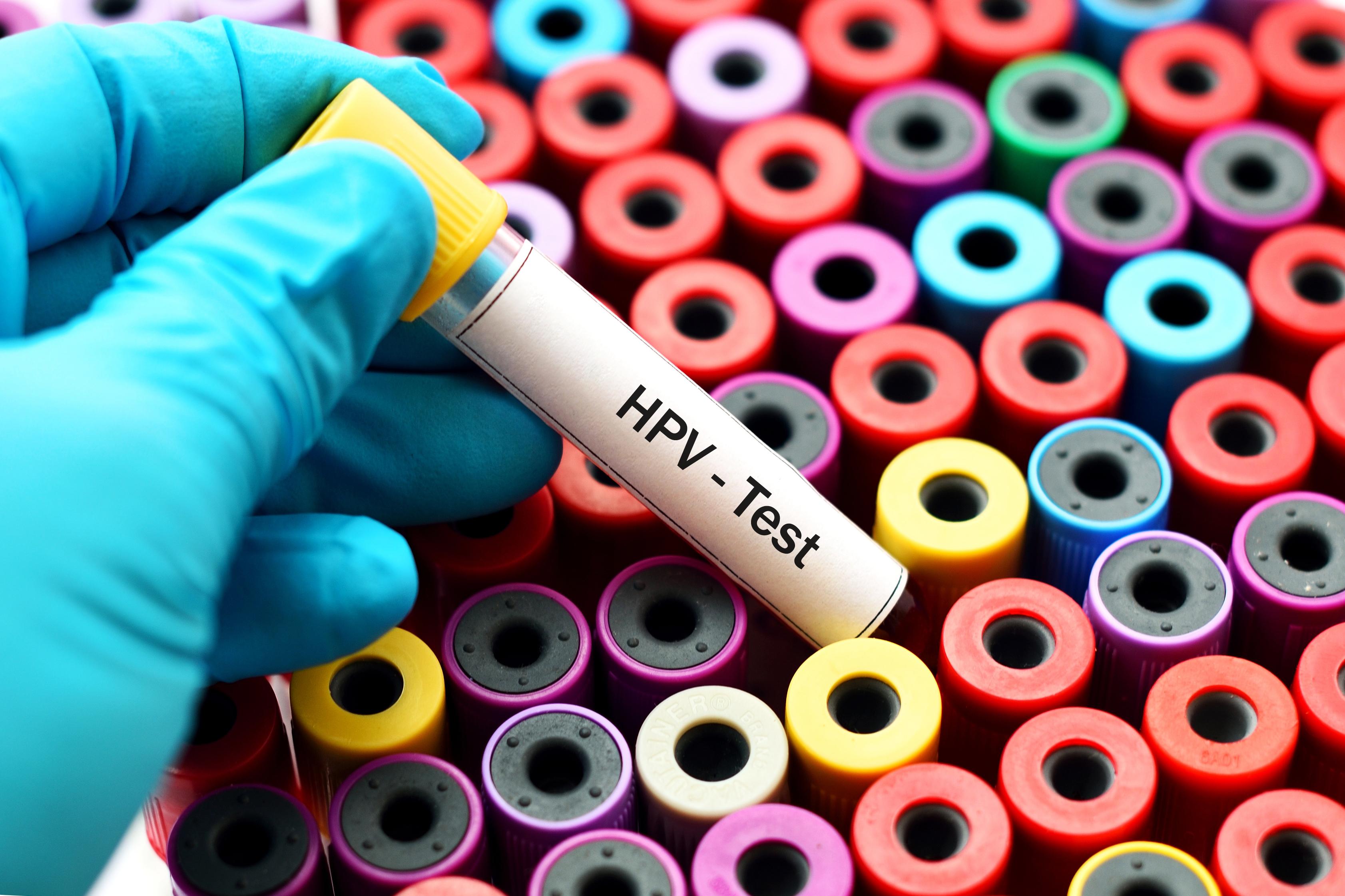 papilloma és óvszer vírus papilloma fedele icd 10