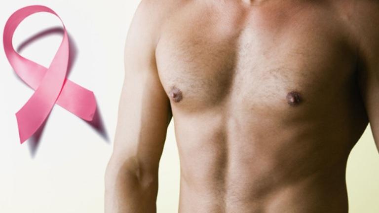 Mellrák férfiaknál – nem csak a nők betegsége?